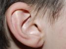 Kulak donması durumunda bunları yapın