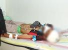 Madaya'da Sağlık Sorunlarının Sebepleri Araştırılıyor
