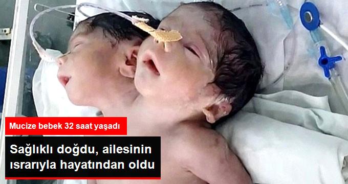 İki Başlı Bebek Hayata Gözlerini Yumdu